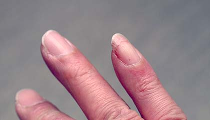 Broken_nail